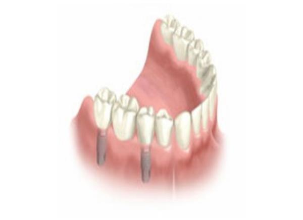 Ponte Fixa sobre implantes Oraltorres Torres Vedras