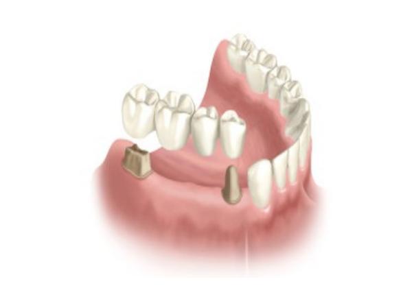 Ponte fixa sobre dentes