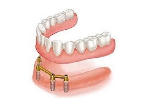 Prótese Removível sobre implantes
