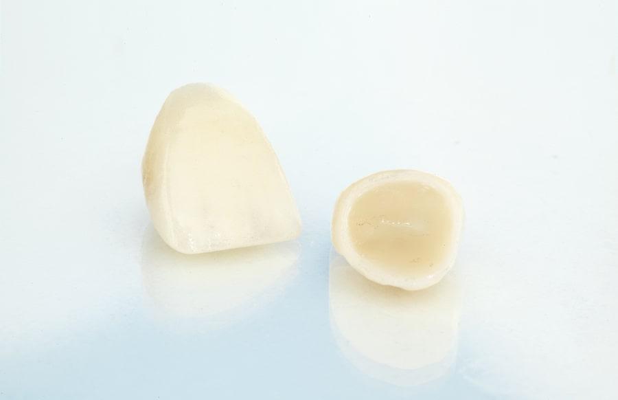 Coroas Dentárias Torres Vedras