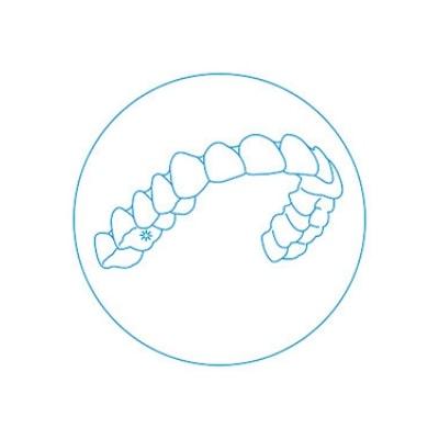 invisalign aplicacao do aparelho dentario